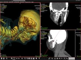Pixeon lança PACS com pesquisa de laudos e imagens por patologia